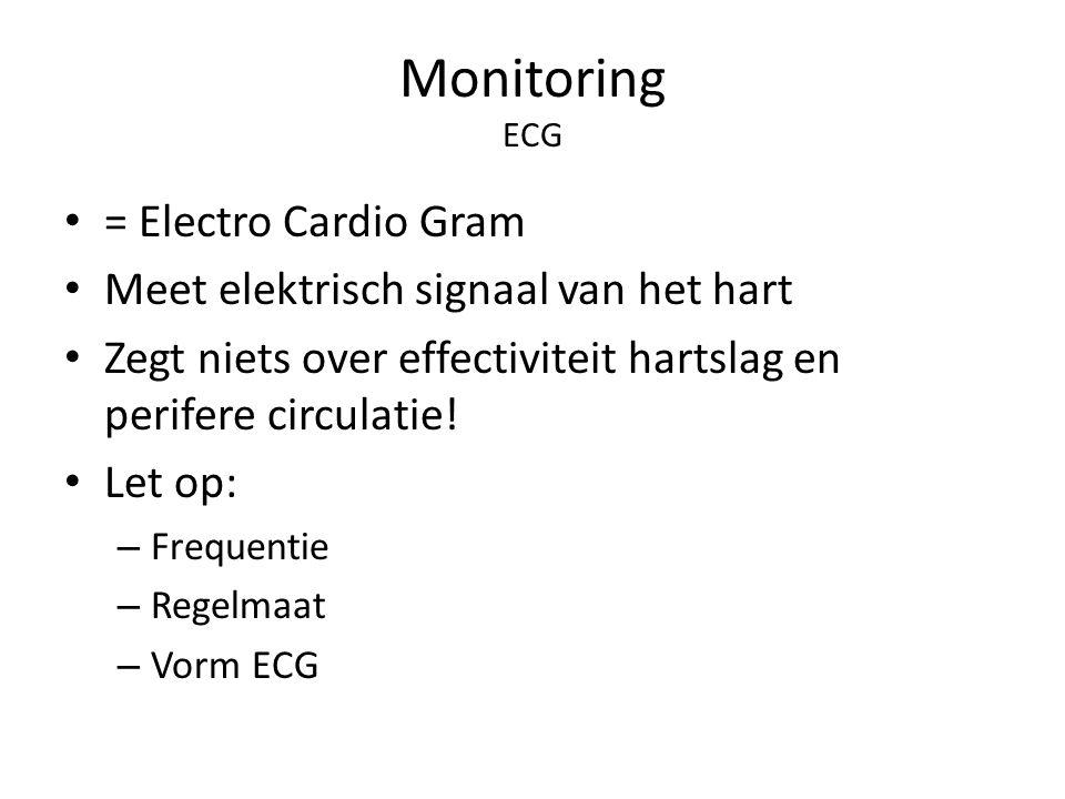 Monitoring ECG = Electro Cardio Gram Meet elektrisch signaal van het hart Zegt niets over effectiviteit hartslag en perifere circulatie! Let op: – Fre