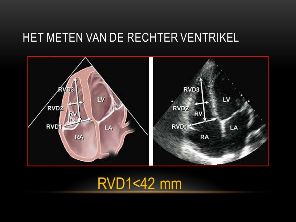 HET METEN VAN DE RECHTER VENTRIKEL RVD1<42 mm