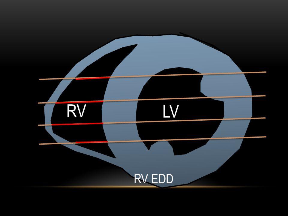 LV RV RV EDD