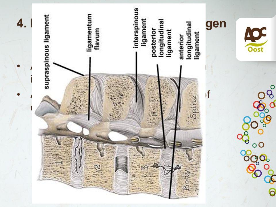 4. Hypertrofie lig flavum/afwijkingen aan de wervelboog Afwijkingen lig flavium als gevolg van instabiliteit Afwijkingen aan wervelboog erfelijk of do