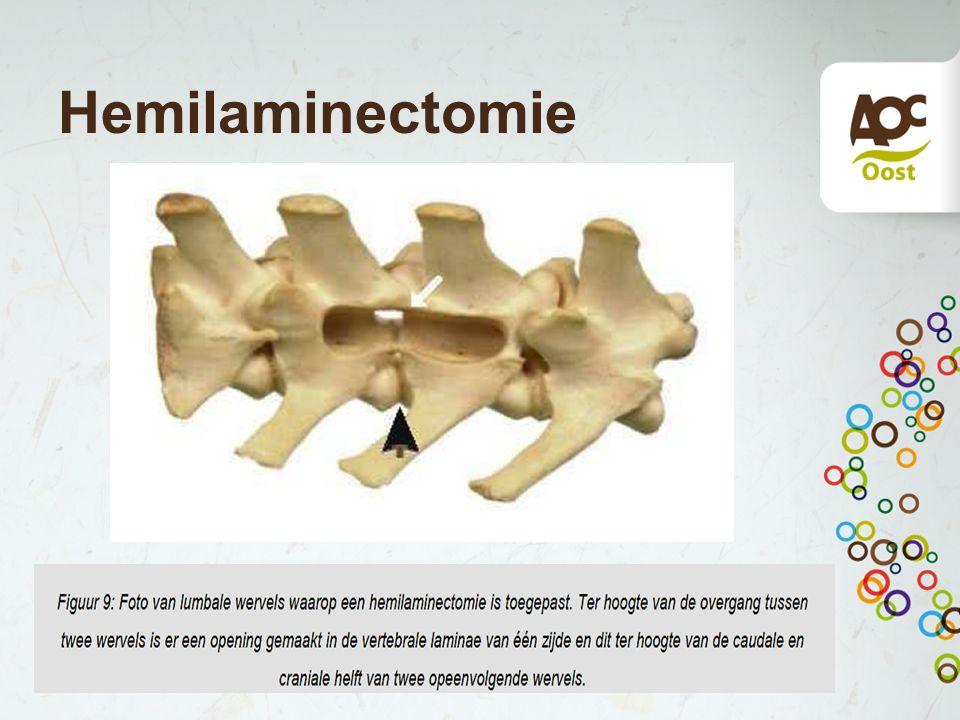 Hemilaminectomie