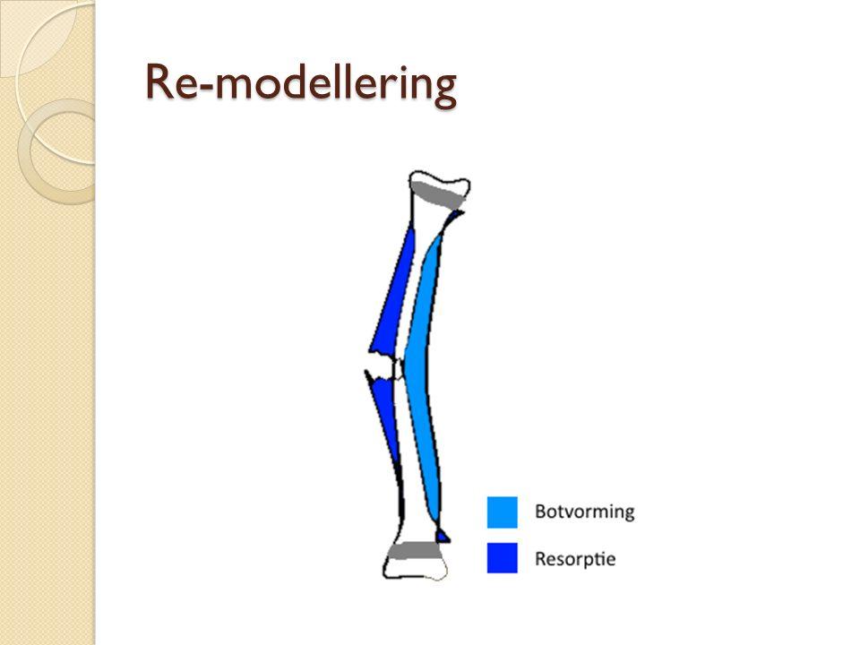 Re-modellering