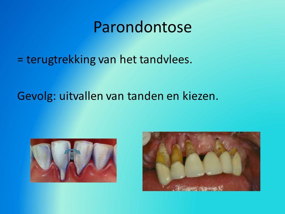 Parondontose = terugtrekking van het tandvlees. Gevolg: uitvallen van tanden en kiezen.