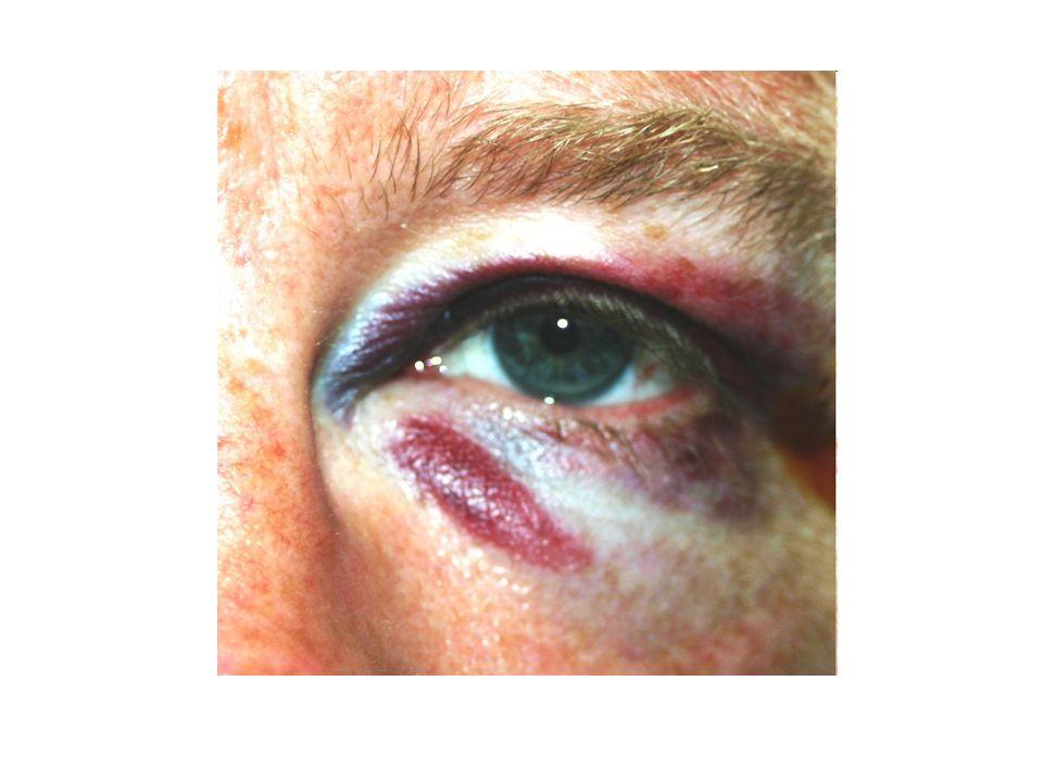 een blauw oog iemand een blauw oog slaan