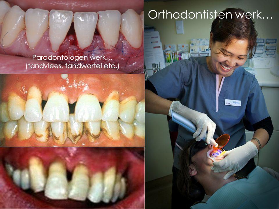 Tijdens je studie kan je verschillende richtingen op gaan. Je kan bijvoorbeeld; -Orthodontist -Kaakchirurg -Tandarts gaan studeren. Dat is in Nederlan