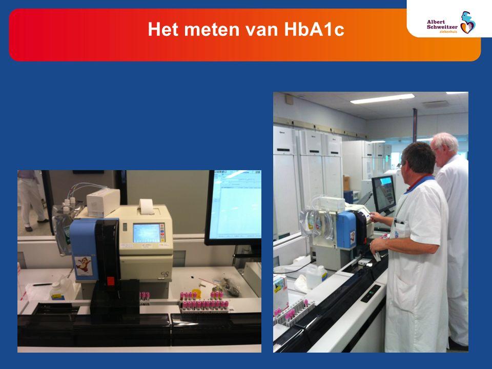 HbA1c HbAo Hemoglobine chromatogram