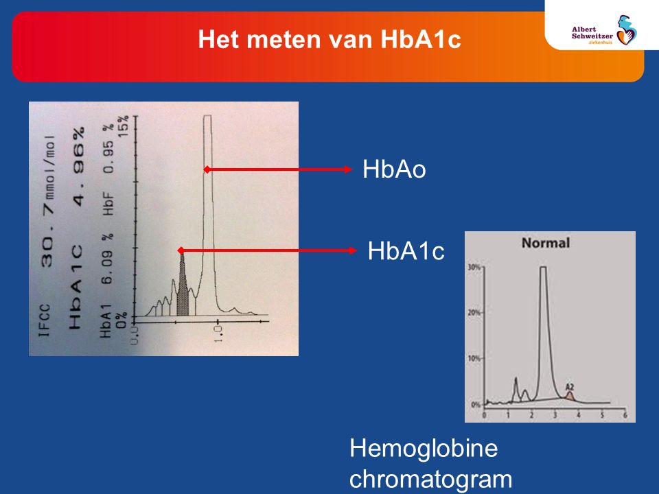 Het meten van HbA1c: beperkingen Te lage HbA1c waarden: Diabetespatiënten met verkorte levensduur rode bloedcellen (bijv.