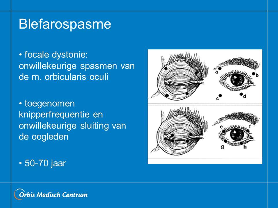 Blefarospasme focale dystonie: onwillekeurige spasmen van de m. orbicularis oculi toegenomen knipperfrequentie en onwillekeurige sluiting van de oogle