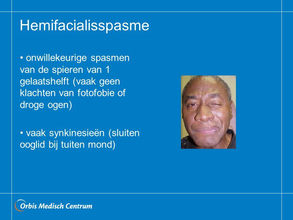 Hemifacialisspasme onwillekeurige spasmen van de spieren van 1 gelaatshelft (vaak geen klachten van fotofobie of droge ogen) vaak synkinesieën (sluiten ooglid bij tuiten mond)