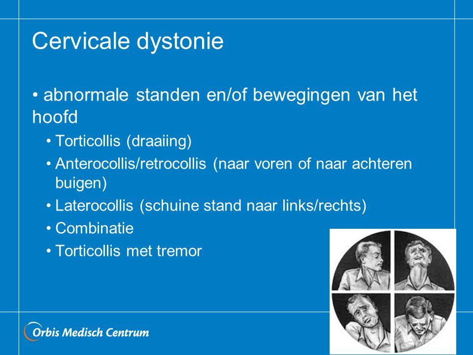 Cervicale dystonie abnormale standen en/of bewegingen van het hoofd Torticollis (draaiing) Anterocollis/retrocollis (naar voren of naar achteren buigen) Laterocollis (schuine stand naar links/rechts) Combinatie Torticollis met tremor