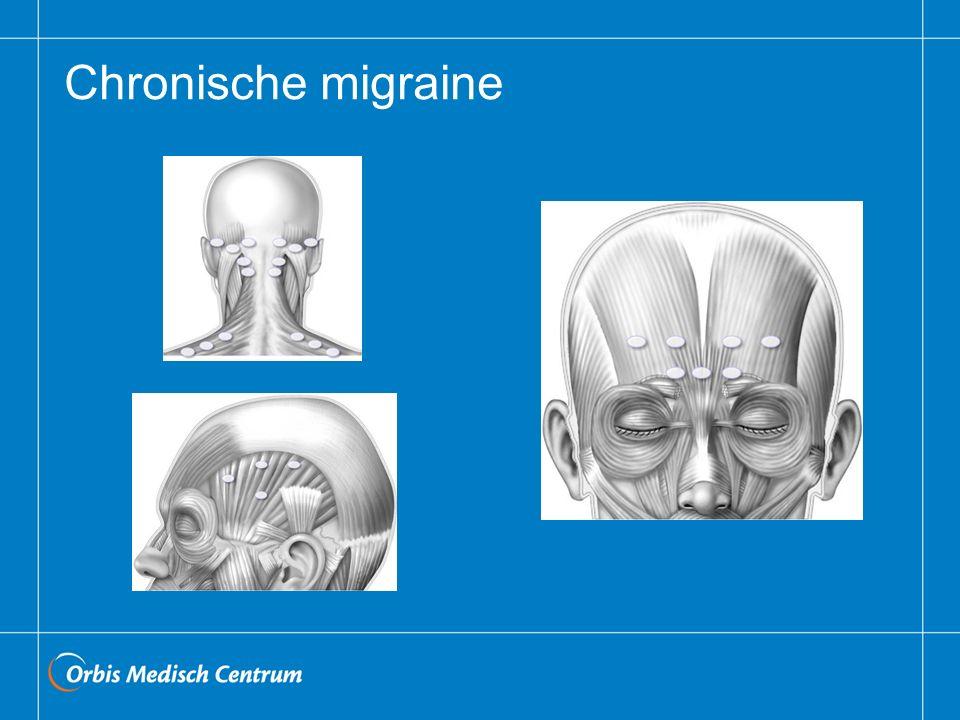 Chronische migraine