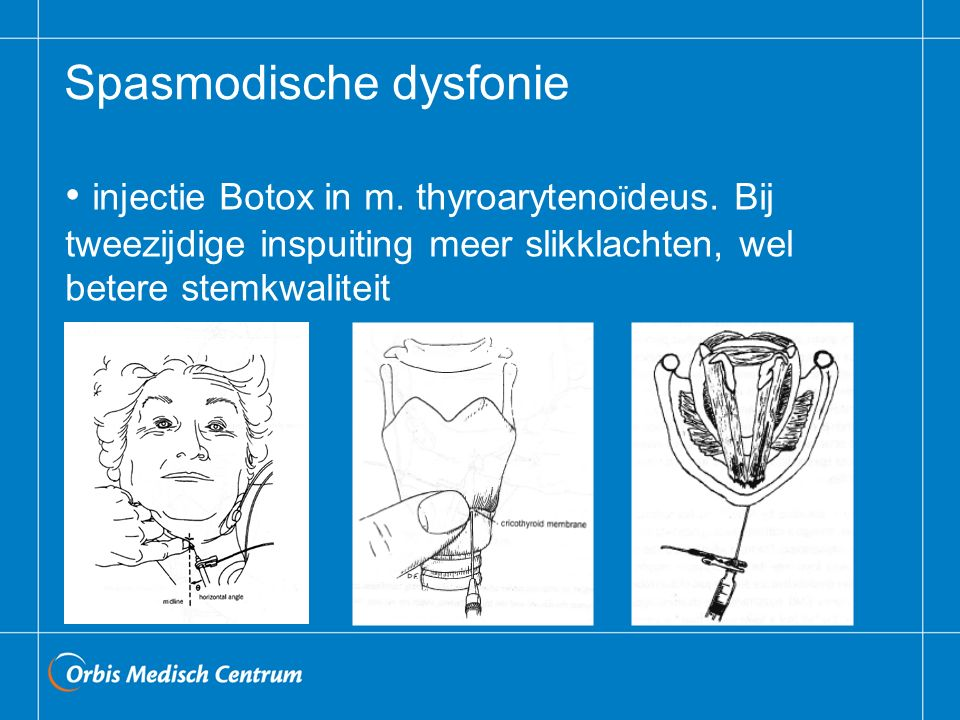 Spasmodische dysfonie injectie Botox in m. thyroaryteno ï deus. Bij tweezijdige inspuiting meer slikklachten, wel betere stemkwaliteit