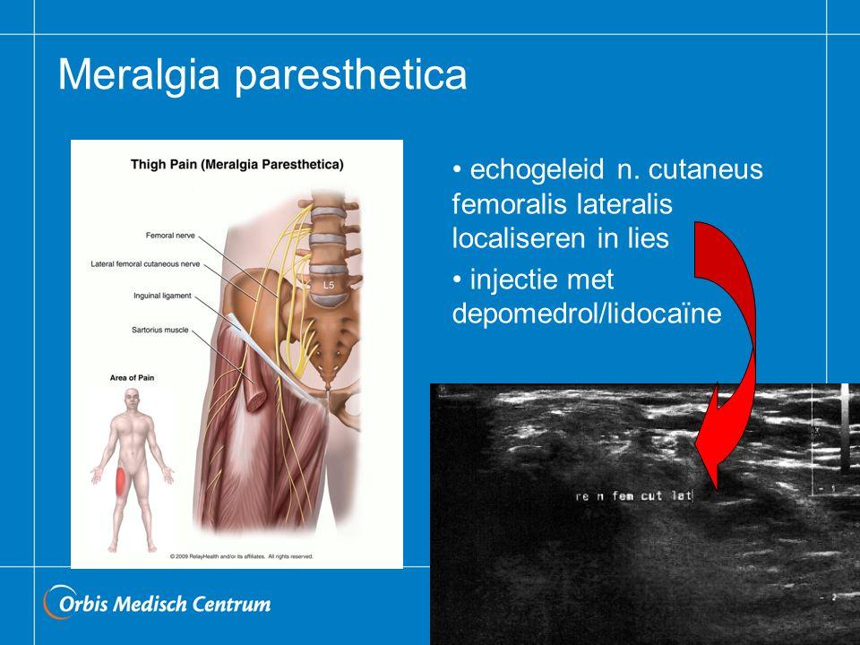 Meralgia paresthetica echogeleid n. cutaneus femoralis lateralis localiseren in lies injectie met depomedrol/lidocaïne