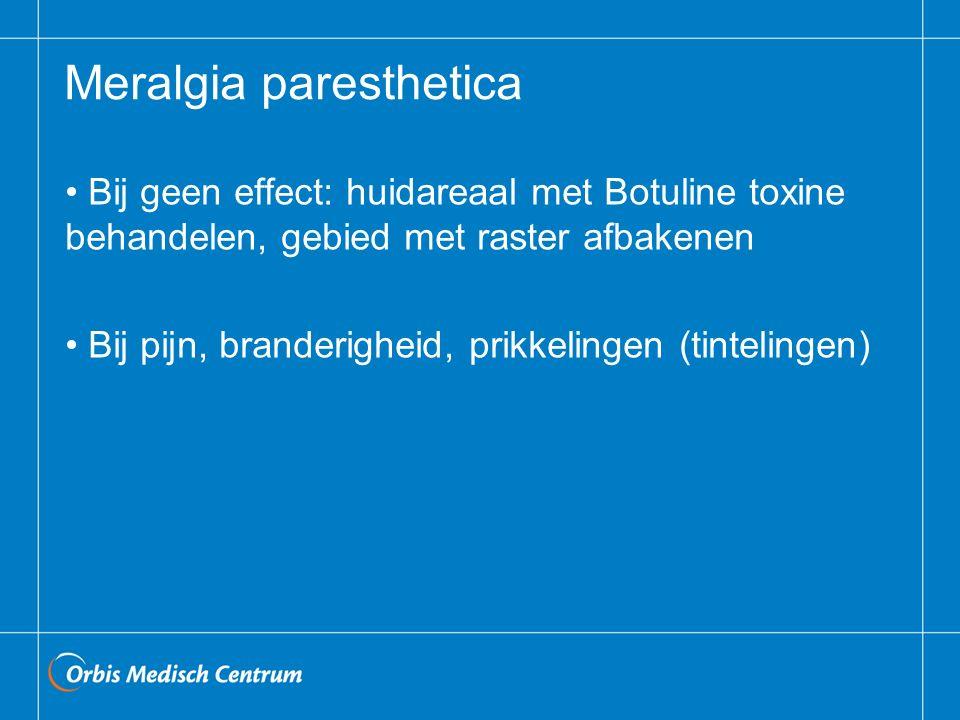 Meralgia paresthetica Bij geen effect: huidareaal met Botuline toxine behandelen, gebied met raster afbakenen Bij pijn, branderigheid, prikkelingen (t