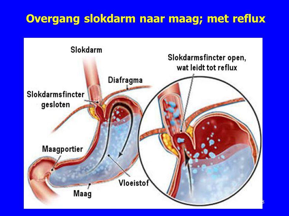 Overgang slokdarm naar maag; met reflux 8