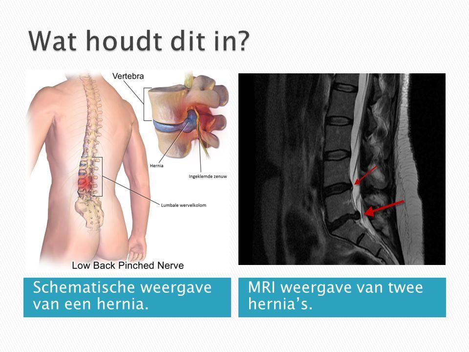 Schematische weergave van een hernia. MRI weergave van twee hernia's.