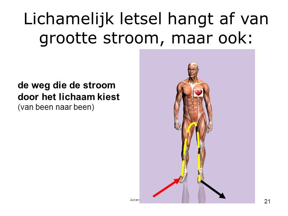 Ackerman Training 21 de weg die de stroom door het lichaam kiest (van been naar been) Lichamelijk letsel hangt af van grootte stroom, maar ook: