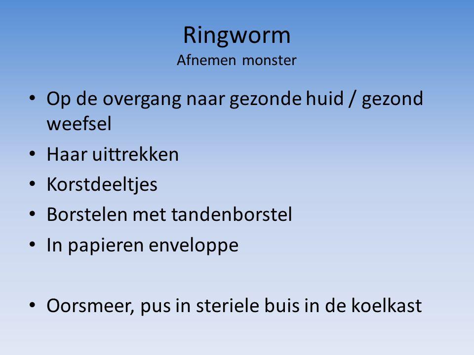 Ringworm Afnemen monster Op de overgang naar gezonde huid / gezond weefsel Haar uittrekken Korstdeeltjes Borstelen met tandenborstel In papieren enveloppe Oorsmeer, pus in steriele buis in de koelkast