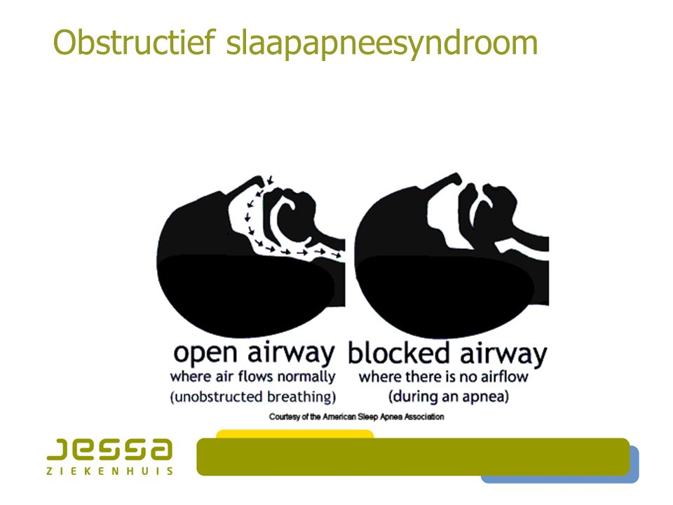 Obstructief slaapapneesyndroom
