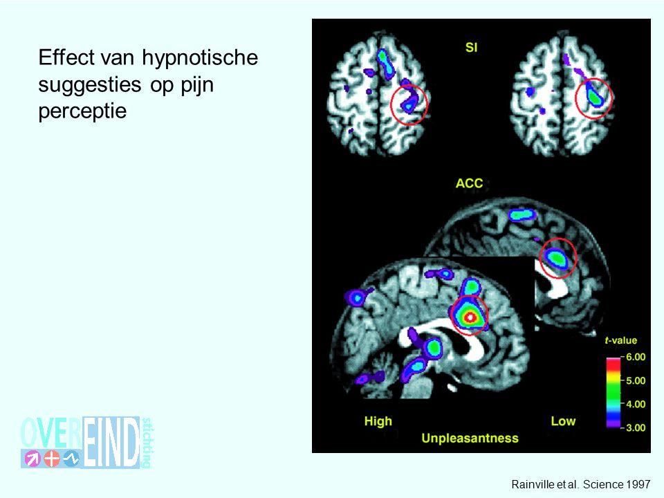 Effect van hypnotische suggesties op pijn perceptie Rainville et al. Science 1997