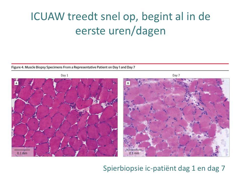 Spierbiopsie ic-patiënt dag 1 en dag 7 ICUAW treedt snel op, begint al in de eerste uren/dagen