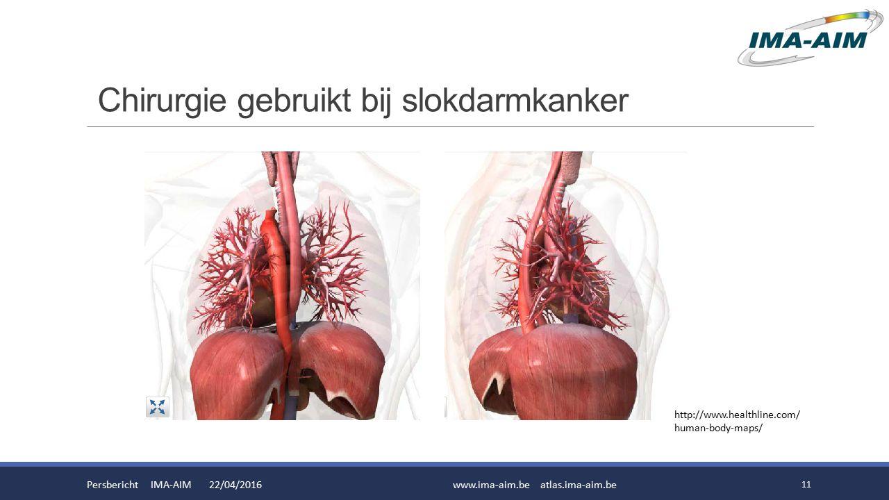 Chirurgie gebruikt bij slokdarmkanker Persbericht IMA-AIM 22/04/2016www.ima-aim.be atlas.ima-aim.be 11 http://www.healthline.com/ human-body-maps/