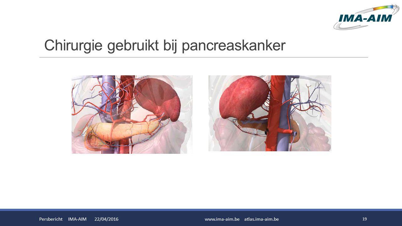 Chirurgie gebruikt bij pancreaskanker Persbericht IMA-AIM 22/04/2016www.ima-aim.be atlas.ima-aim.be 19