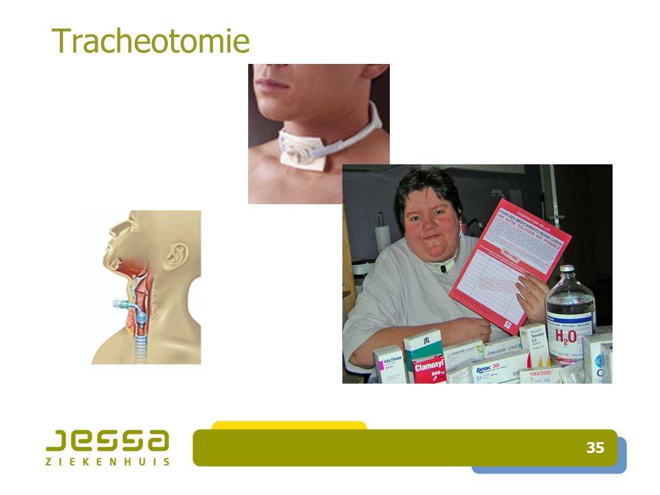 35 Tracheotomie