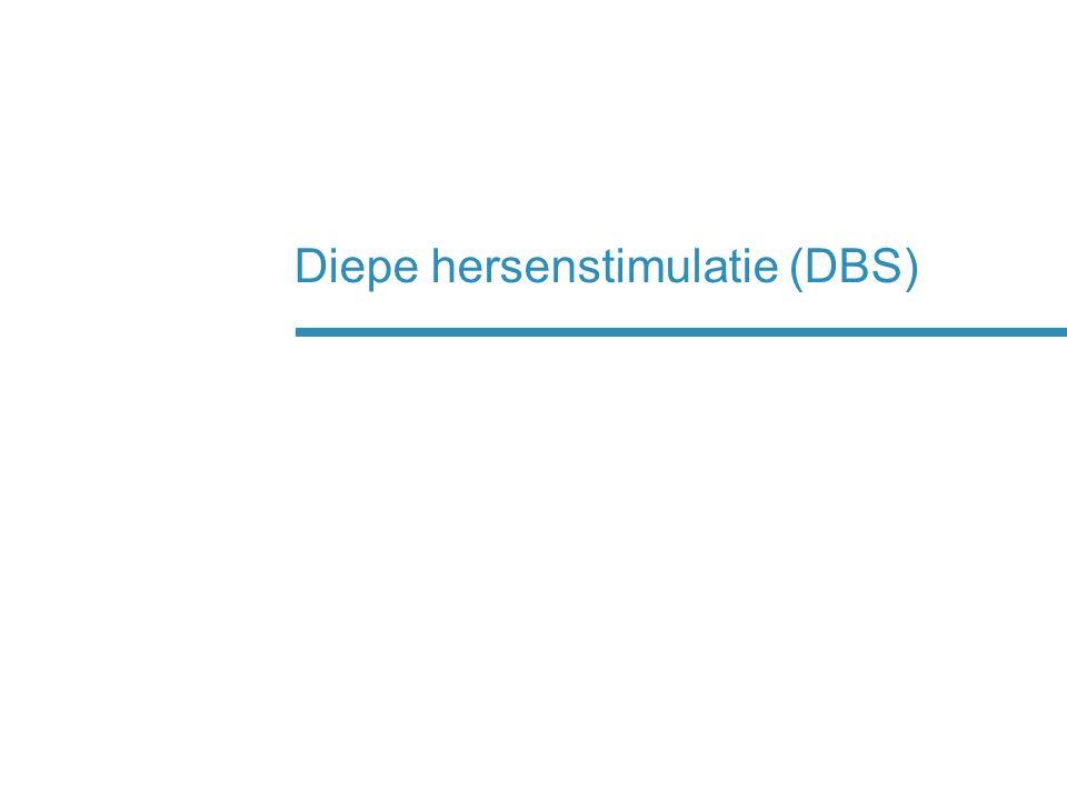 Diepe hersenstimulatie (DBS)