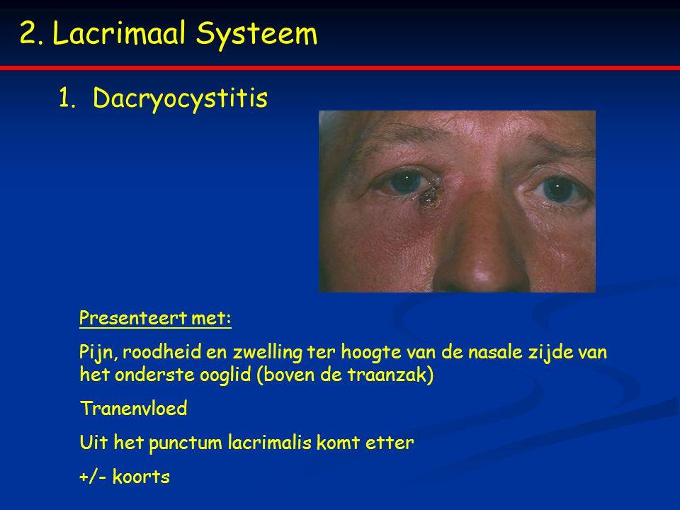 2.Lacrimaal Systeem 1.Dacryocystitis Presenteert met: Pijn, roodheid en zwelling ter hoogte van de nasale zijde van het onderste ooglid (boven de traanzak) Tranenvloed Uit het punctum lacrimalis komt etter +/- koorts