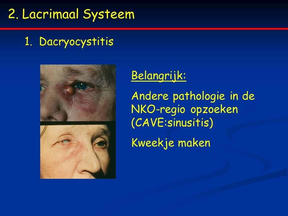 2.Lacrimaal Systeem 1.Dacryocystitis Belangrijk: Andere pathologie in de NKO-regio opzoeken (CAVE:sinusitis) Kweekje maken