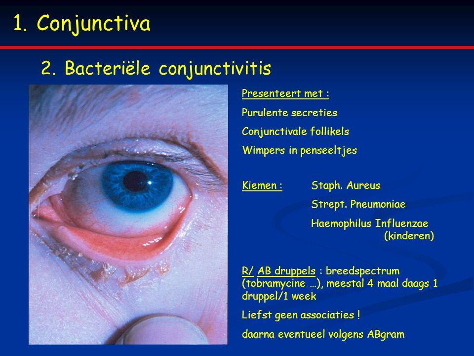 1.Conjunctiva 2.Bacteriële conjunctivitis Presenteert met : Purulente secreties Conjunctivale follikels Wimpers in penseeltjes Kiemen : Staph.