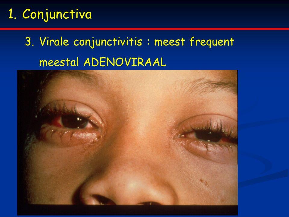 1.Conjunctiva 3.Virale conjunctivitis : meest frequent meestal ADENOVIRAAL
