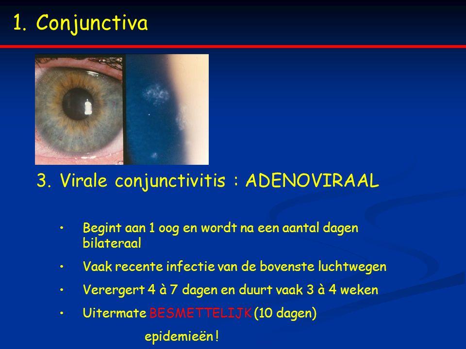 1.Conjunctiva 3.Virale conjunctivitis : ADENOVIRAAL Begint aan 1 oog en wordt na een aantal dagen bilateraal Vaak recente infectie van de bovenste luc
