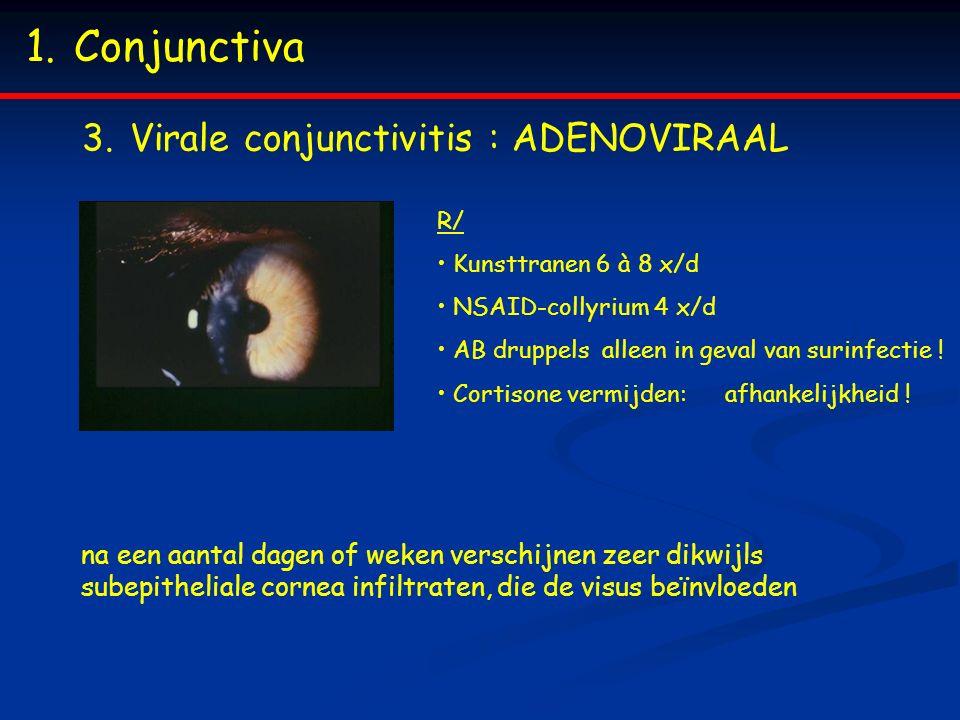 1.Conjunctiva 3.Virale conjunctivitis : ADENOVIRAAL R/ Kunsttranen 6 à 8 x/d NSAID-collyrium 4 x/d AB druppels alleen in geval van surinfectie .