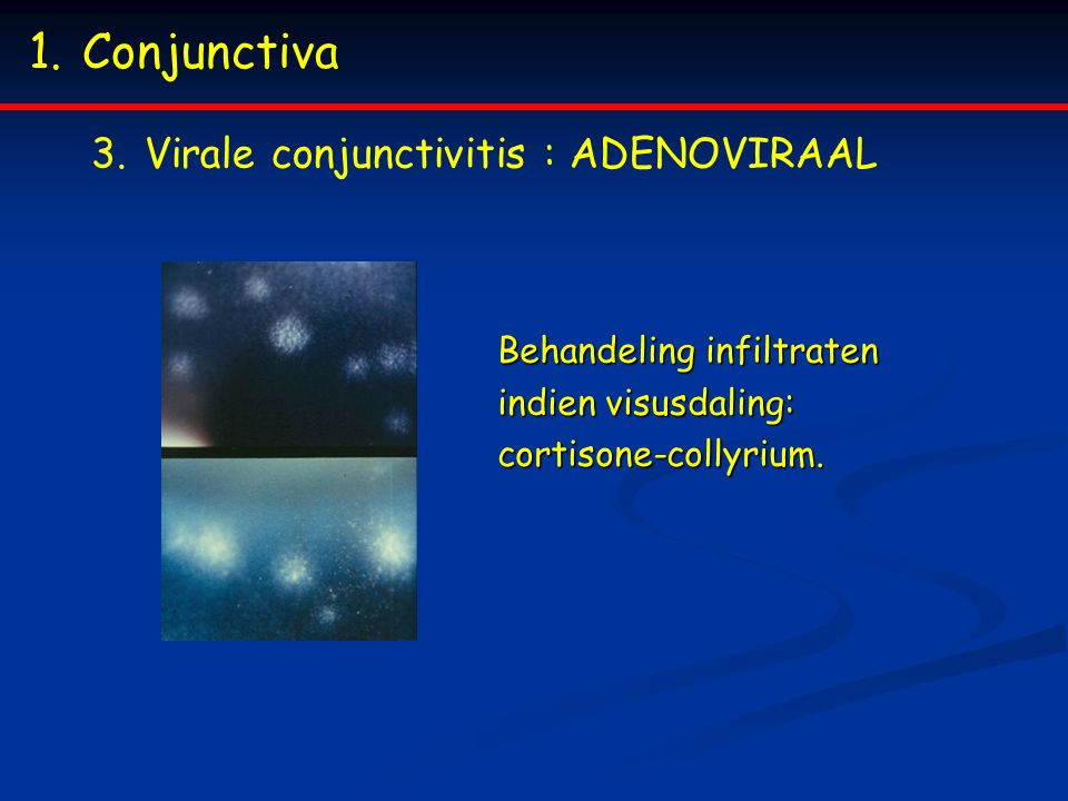 1.Conjunctiva 3.Virale conjunctivitis : ADENOVIRAAL Behandeling infiltraten indien visusdaling: cortisone-collyrium.
