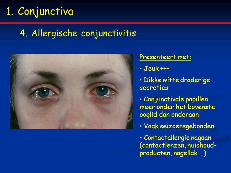 1.Conjunctiva 4.Allergische conjunctivitis Presenteert met: Jeuk +++ Dikke witte draderige secreties Conjunctivale papillen meer onder het bovenste oo
