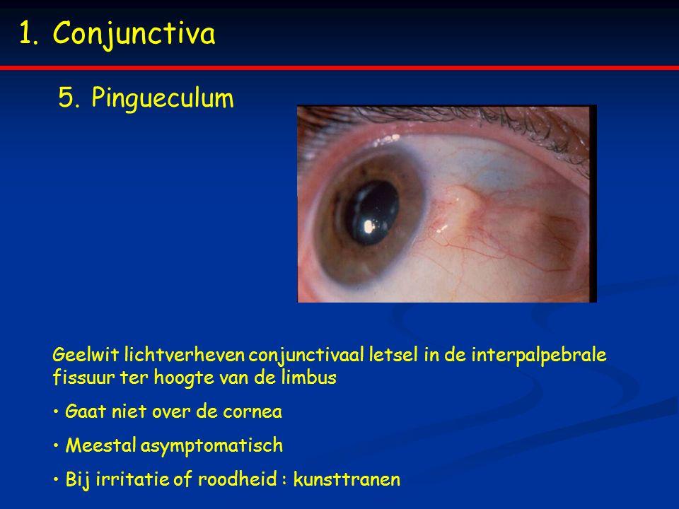 1.Conjunctiva 5.Pingueculum Geelwit lichtverheven conjunctivaal letsel in de interpalpebrale fissuur ter hoogte van de limbus Gaat niet over de cornea Meestal asymptomatisch Bij irritatie of roodheid : kunsttranen