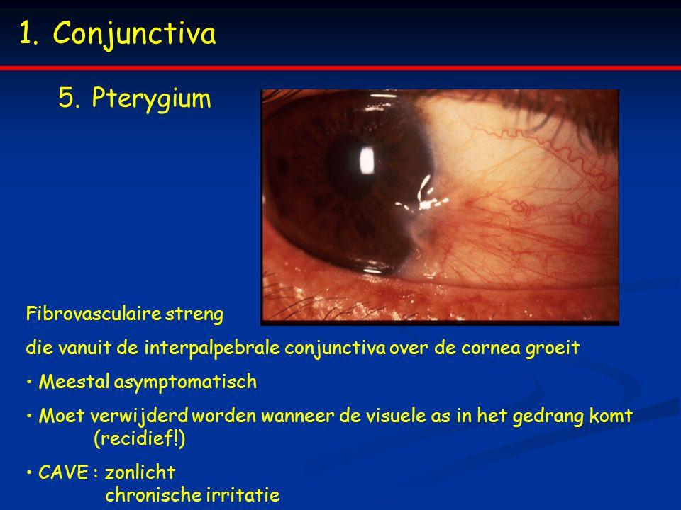 1.Conjunctiva 5.Pterygium Fibrovasculaire streng die vanuit de interpalpebrale conjunctiva over de cornea groeit Meestal asymptomatisch Moet verwijderd worden wanneer de visuele as in het gedrang komt (recidief!) CAVE : zonlicht chronische irritatie