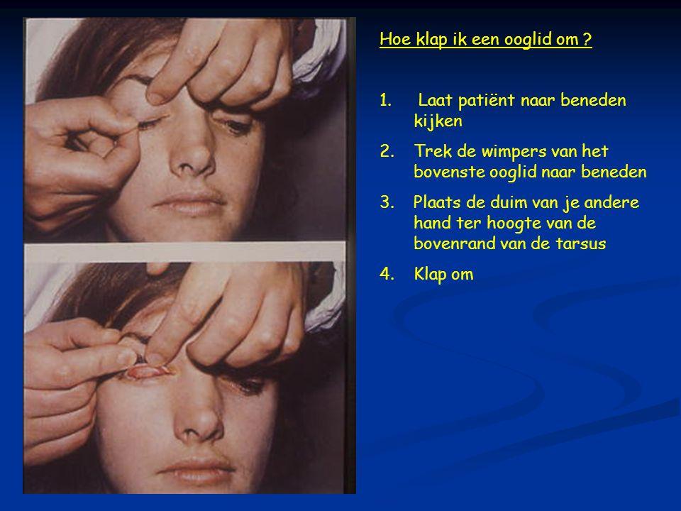 Hoe klap ik een ooglid om ? 1. Laat patiënt naar beneden kijken 2.Trek de wimpers van het bovenste ooglid naar beneden 3.Plaats de duim van je andere