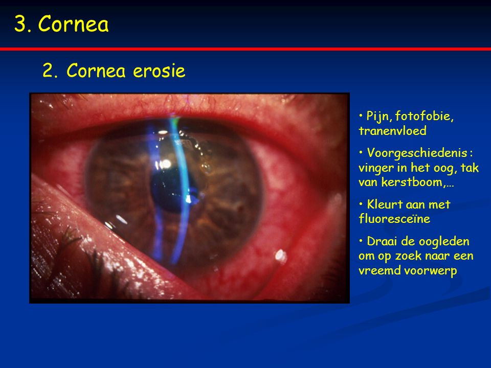 3.Cornea 2.Cornea erosie Pijn, fotofobie, tranenvloed Voorgeschiedenis : vinger in het oog, tak van kerstboom,… Kleurt aan met fluoresceïne Draai de o