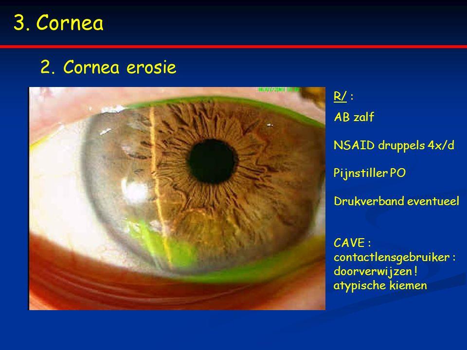 3.Cornea 2.Cornea erosie R/ : AB zalf NSAID druppels 4x/d Pijnstiller PO Drukverband eventueel CAVE : contactlensgebruiker : doorverwijzen ! atypische