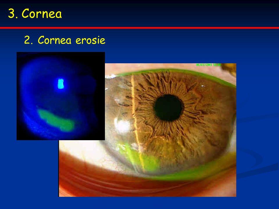 3.Cornea 2.Cornea erosie