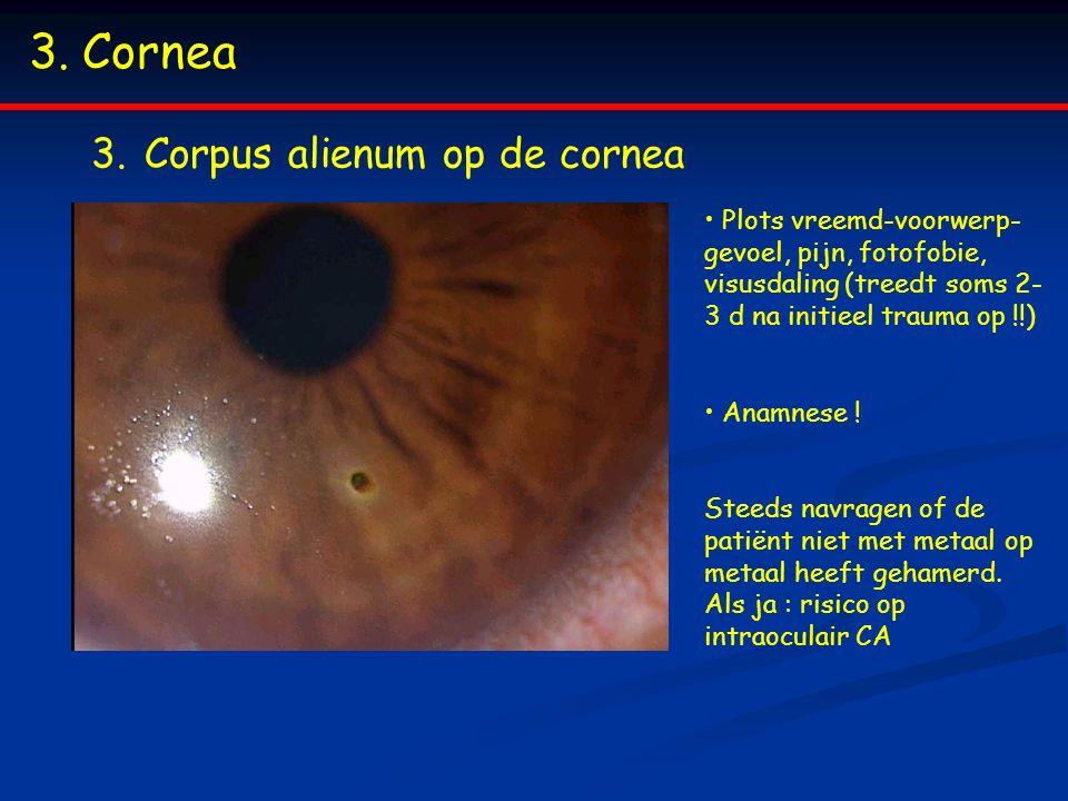 3.Cornea 3.Corpus alienum op de cornea Plots vreemd-voorwerp- gevoel, pijn, fotofobie, visusdaling (treedt soms 2- 3 d na initieel trauma op !!) Anamn