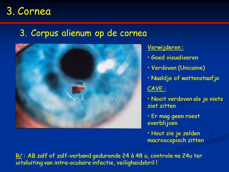 3.Cornea 3.Corpus alienum op de cornea Verwijderen : Goed visualiseren Verdoven (Unicaïne) Naaldje of wattenstaafje CAVE : Nooit verdoven als je niets ziet zitten Er mag geen roest overblijven Hout zie je zelden macroscopisch zitten R/ : AB zalf of zalf-verband gedurende 24 à 48 u, controle na 24u ter uitsluiting van intra-oculaire infectie, veiligheidsbril !