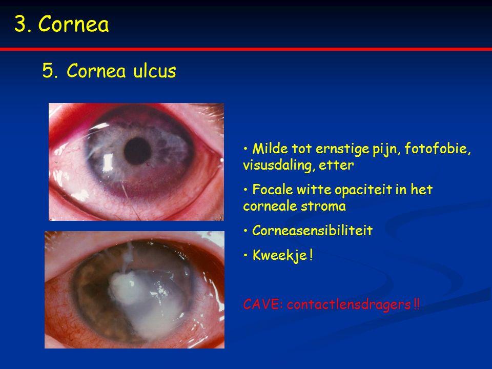 3.Cornea 5.Cornea ulcus Milde tot ernstige pijn, fotofobie, visusdaling, etter Focale witte opaciteit in het corneale stroma Corneasensibiliteit Kweekje .