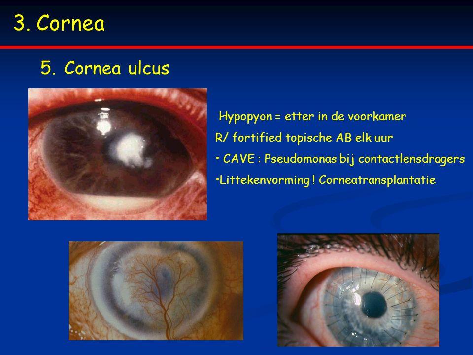 3.Cornea 5.Cornea ulcus Hypopyon = etter in de voorkamer R/ fortified topische AB elk uur CAVE : Pseudomonas bij contactlensdragers Littekenvorming .