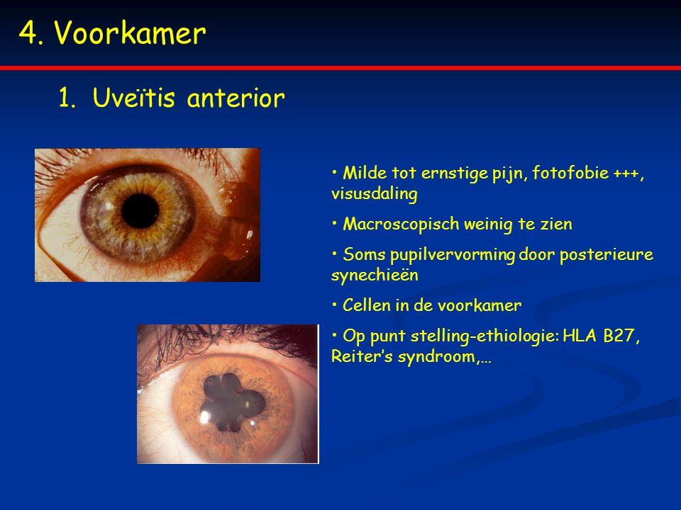 4.Voorkamer 1.Uveïtis anterior Milde tot ernstige pijn, fotofobie +++, visusdaling Macroscopisch weinig te zien Soms pupilvervorming door posterieure
