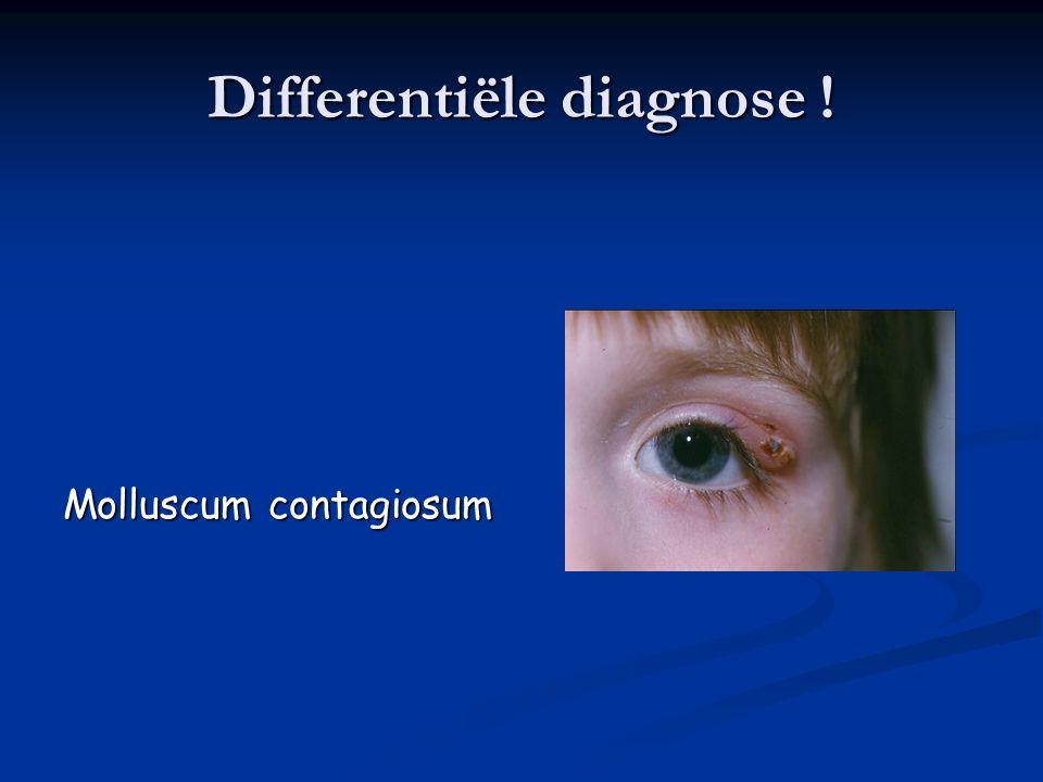 1.Conjunctiva 4.Allergische conjunctivitis Presenteert met: Jeuk +++ Dikke witte draderige secreties Conjunctivale papillen meer onder het bovenste ooglid dan onderaan Vaak seizoensgebonden Contactallergie nagaan (contactlenzen, huishoud- producten, nagellak …)