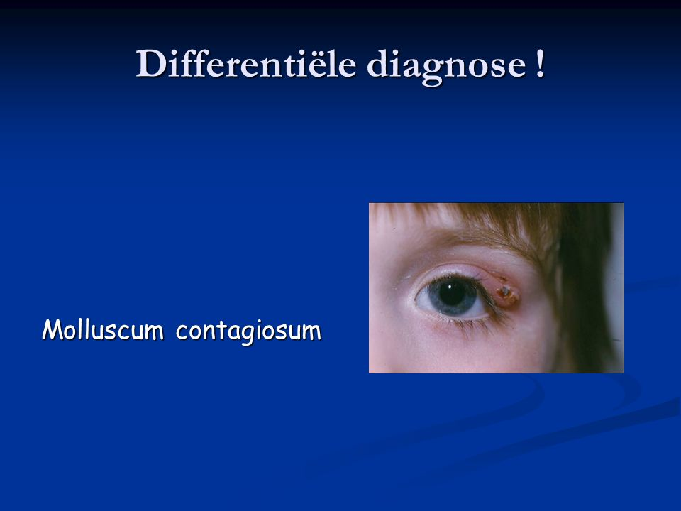 Differentiële diagnose ! Molluscum contagiosum
